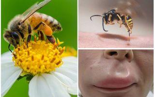 ماذا تفعل إذا كان النحل قد عض في الشفة