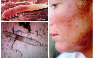 قمل تحت الجلد في البشر على الجسم والرأس