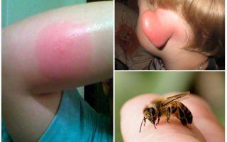 عض النحل - ماذا تفعل في المنزل
