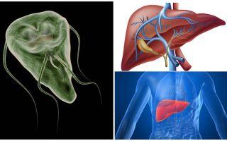 الجيارديا في الكبد - الأعراض والعلاج