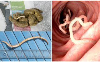 كيف تبدو الديدان المستديرة في فضلات الإنسان؟