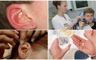 ضع علامة في أذني الشخص: الأعراض والعلاج