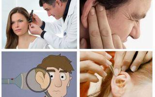 ماذا تفعل إذا صعد صرصور في الأذن
