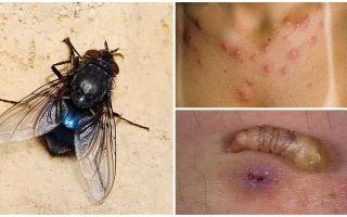 ذبابة تضع اليرقات تحت جلد الإنسان