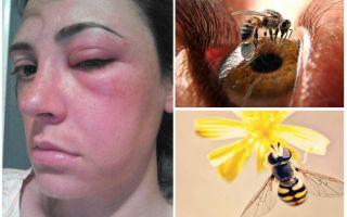 ماذا لو كانت النحلة في العين وتضخمت