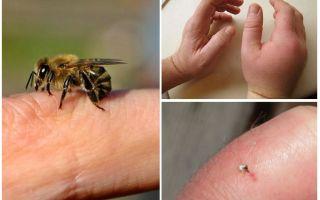 ما هو لدغة النحل مفيدة لشخص؟