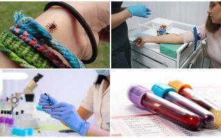اختبارات الدم بعد لدغة القراد