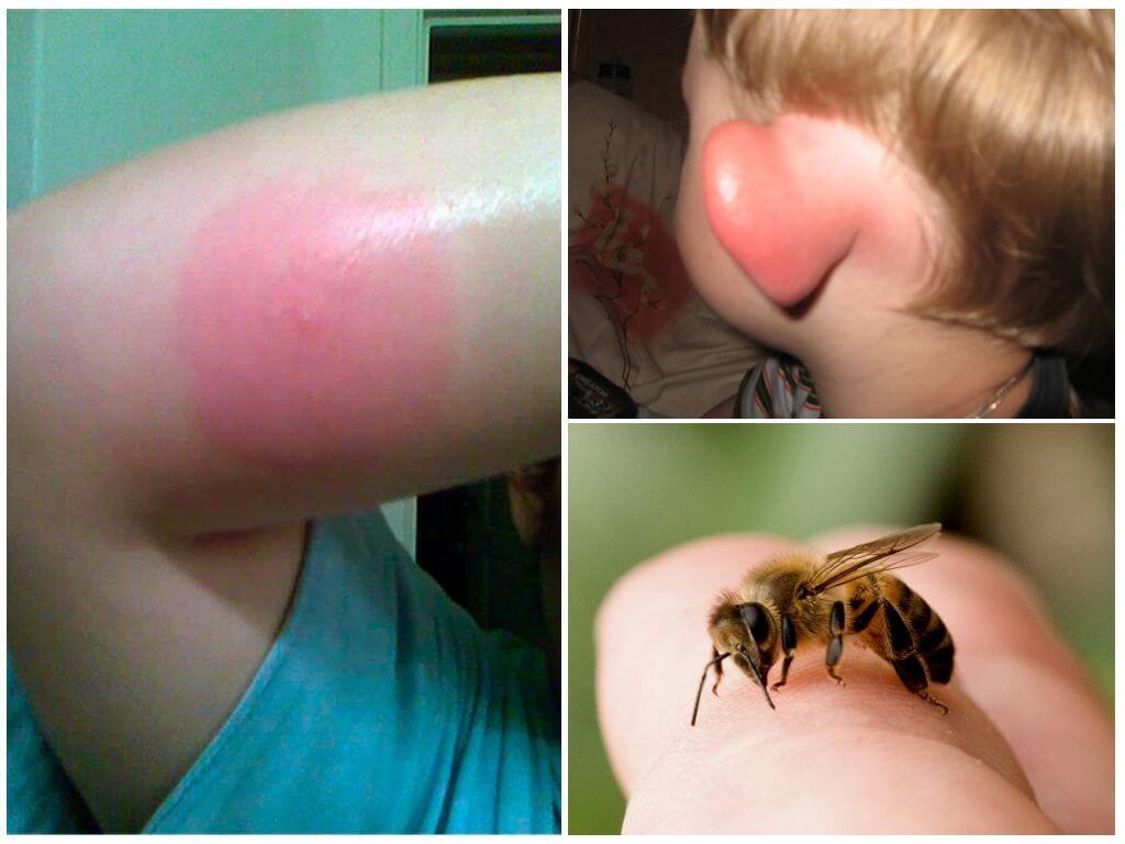 لدغة نحلة
