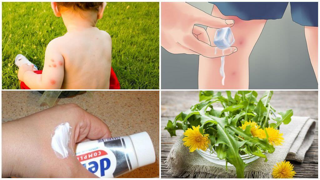وصفات تقليدية لعلاج لدغات البعوض