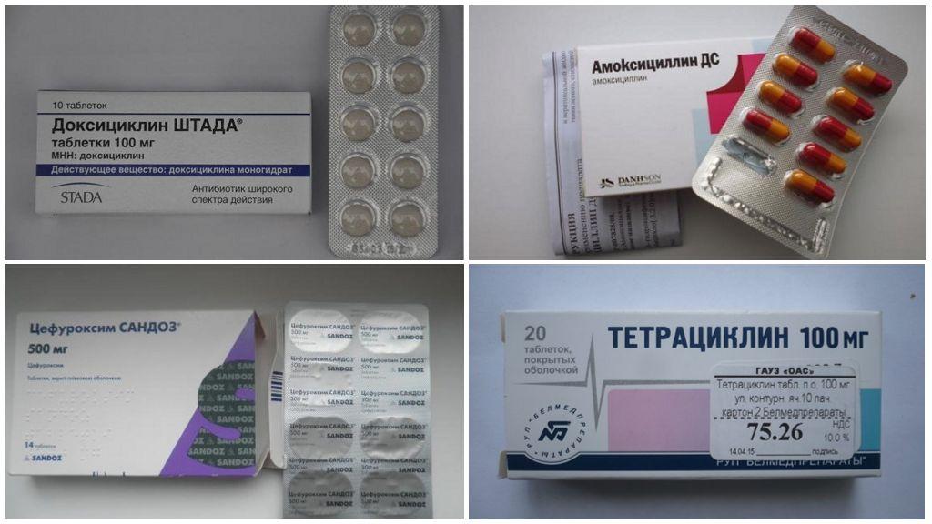 المضادات الحيوية لالشياط