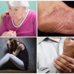 أعراض المرحلة المزمنة من المرض