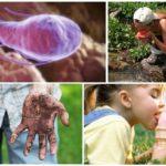أسباب العدوى الجيارديا